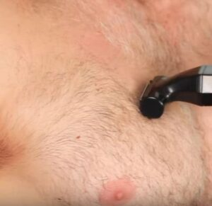 Best Body Hair Trimmer